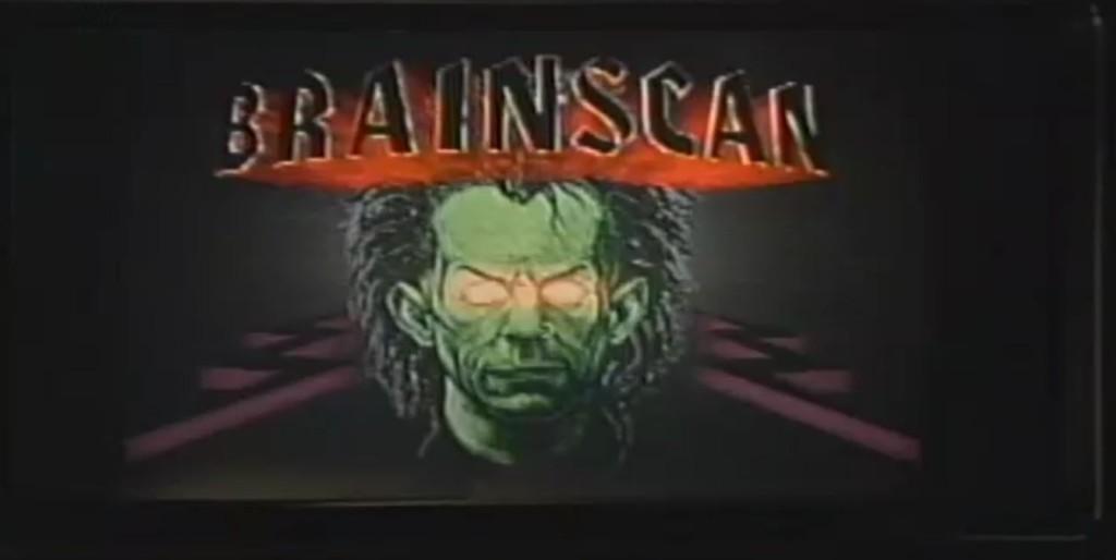 BrainscanEpImage2